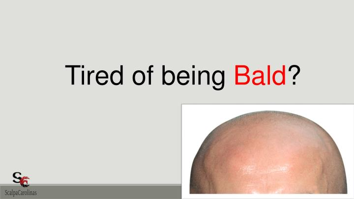 tired of being bald n.