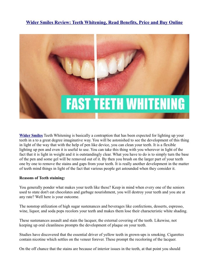 wider smiles review teeth whitening read benefits n.
