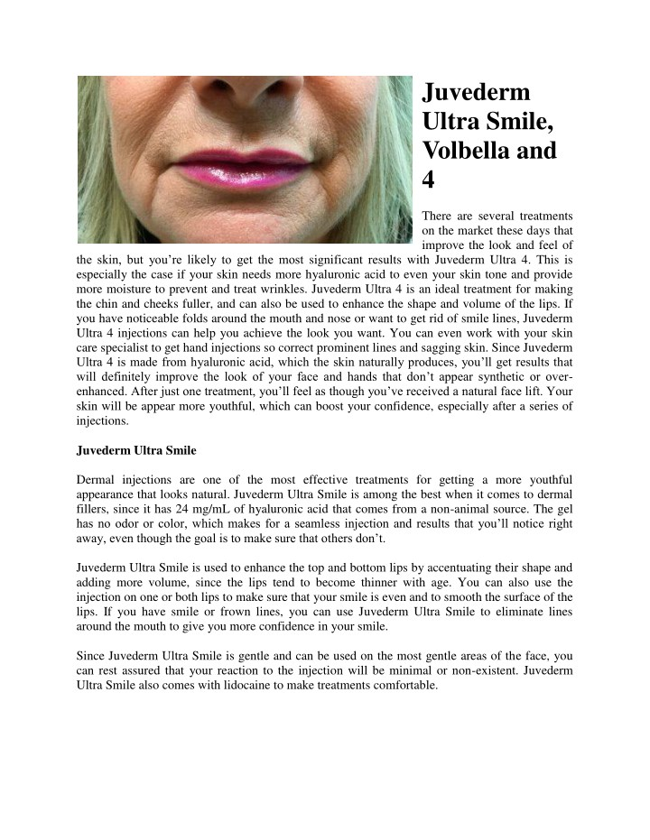 PPT - Juvederm Ultra Smile, Volbella and 4 PowerPoint
