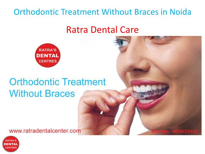 orthodontic treatment without braces in noida n.