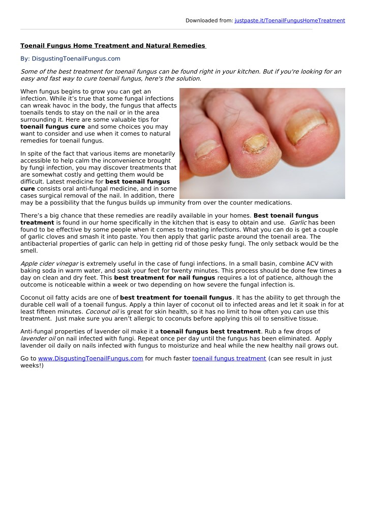 PPT - Toenail Fungus Home Treatment and Natural Remedies PowerPoint ...