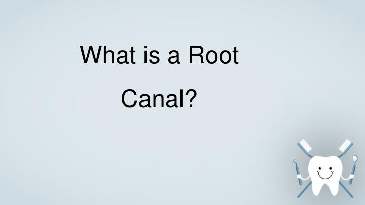 what is a root canal n.