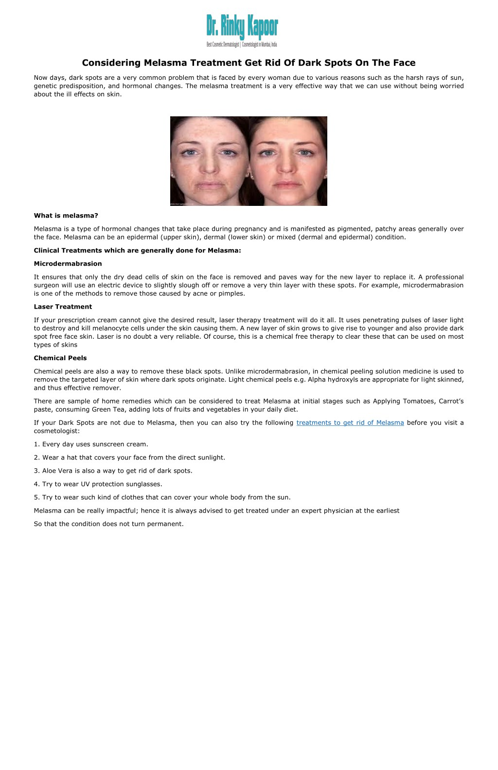 PPT - Considering Melasma Treatment Get Rid Of Dark Spots On