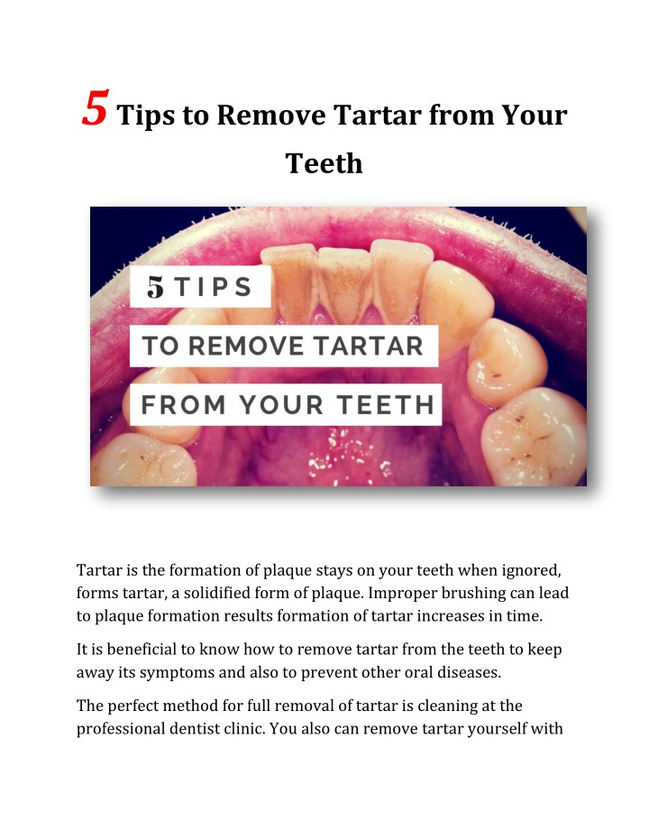 PPT - 5 Tips to Remove Tartar from Your Teeth PowerPoint