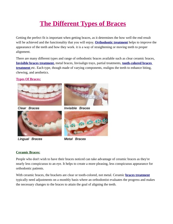 the different types of braces n.