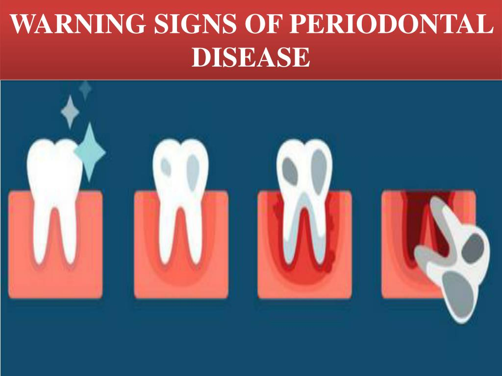 Ppt Warning Signs Of Periodontal Disease Powerpoint Presentation