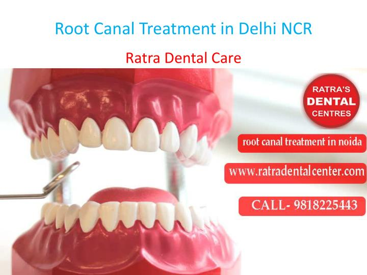 root canal treatment in delhi ncr n.