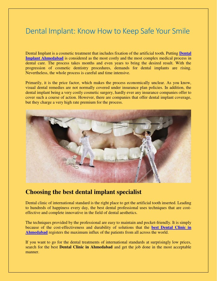 dental implant know how to keep safe your smile n.