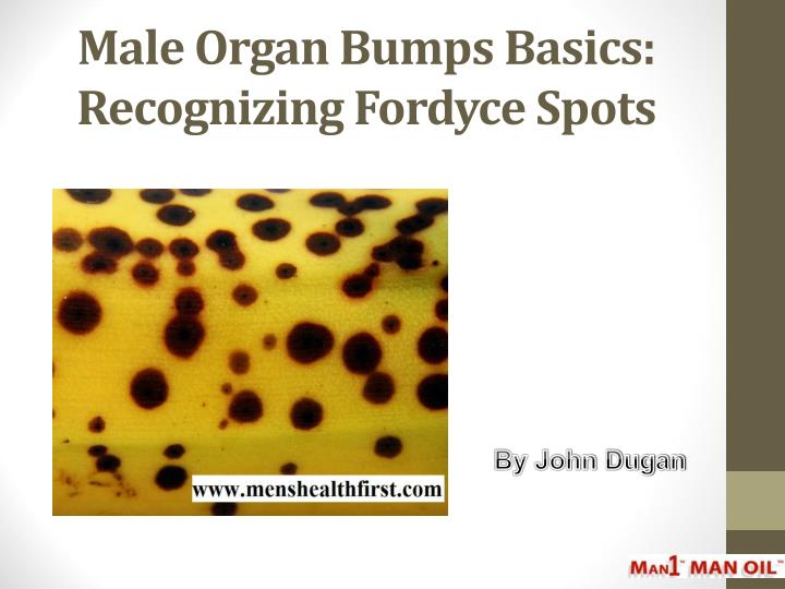 PPT - Male Organ Bumps Basics: Recognizing Fordyce Spots