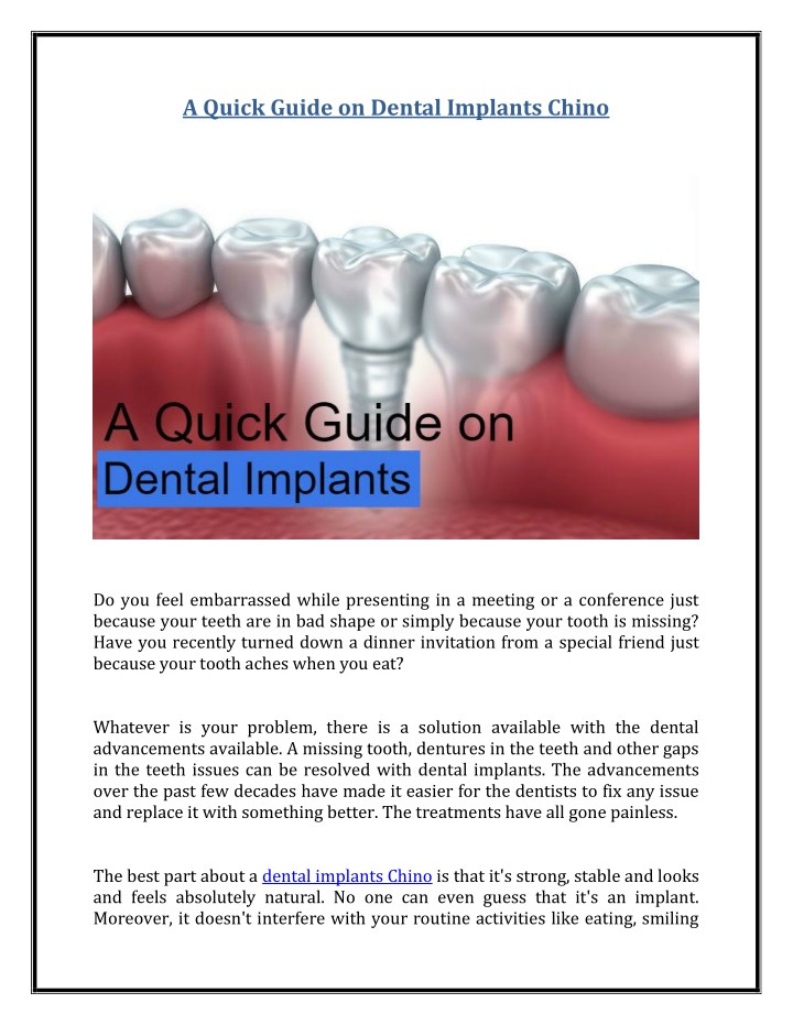 a quick guide on dental implants chino n.
