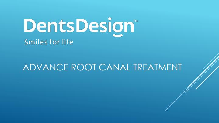 advance root canal treatment n.