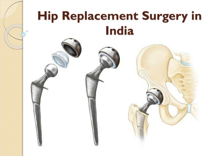 PPT - Cost of hip replacement Surgery in India PowerPoint