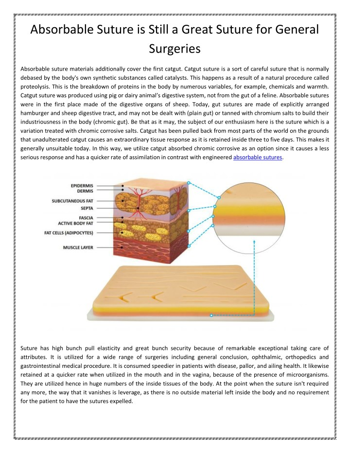 PPT - Absorbable Sutures PowerPoint Presentation - ID:7997957