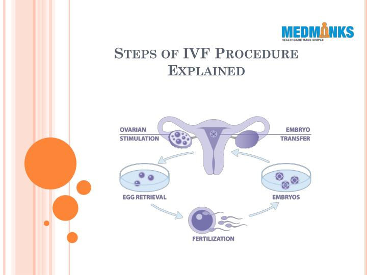 steps of ivf procedure explained n.