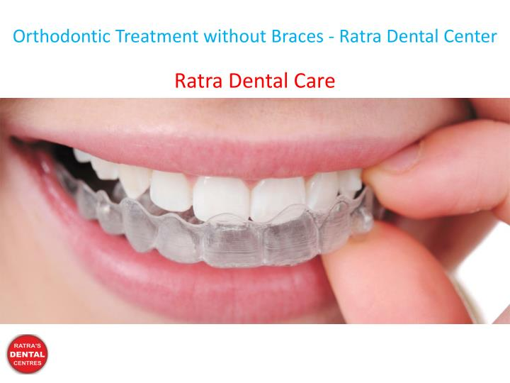 orthodontic treatment without braces ratra dental n.