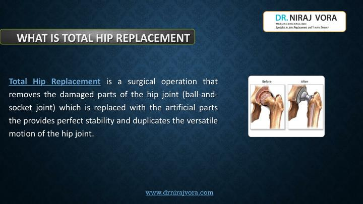 what is total hip replacement n.