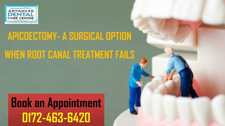 apicoectomy a surgical option when root canal n.