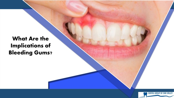 what are the implications of bleeding gums n.