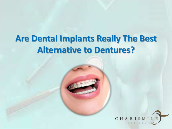 are dental implants really the best alternative to dentures n.