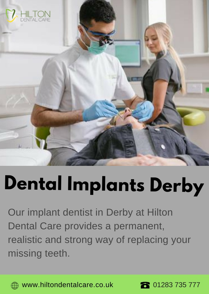 dental implants derby n.