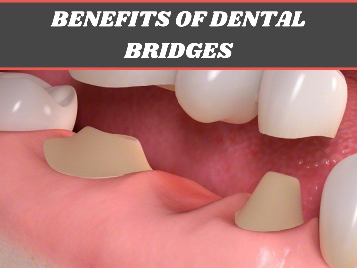 benefits of dental bridges n.