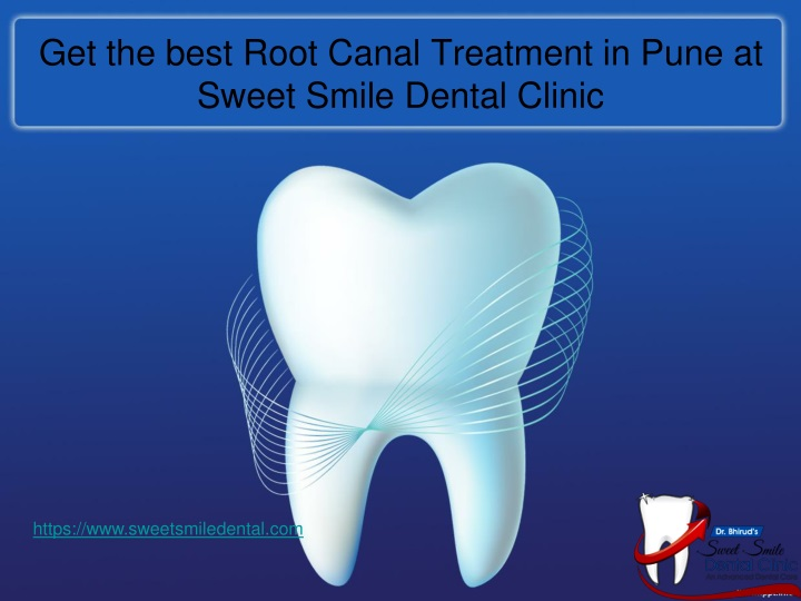 get the best root canal treatment in pune at sweet smile dental clinic n.