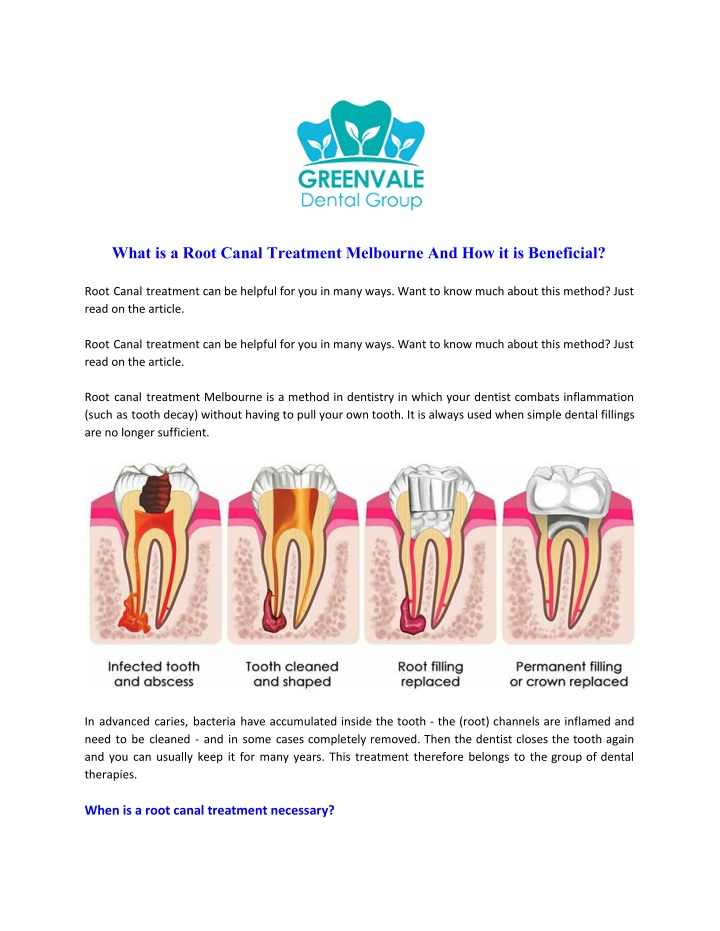what is a root canal treatment melbourne n.