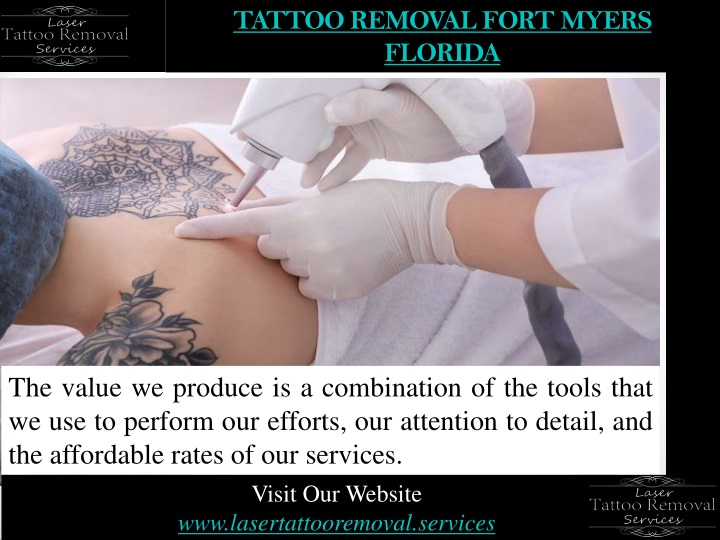 tattoo removal fort myers florida n.