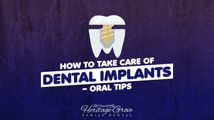 how to take care of dental implants oral tips n.